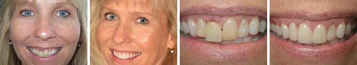 dentalimplants_case1