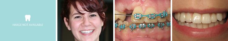 dentalimplants_case2