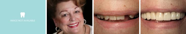 dentalimplants_case3